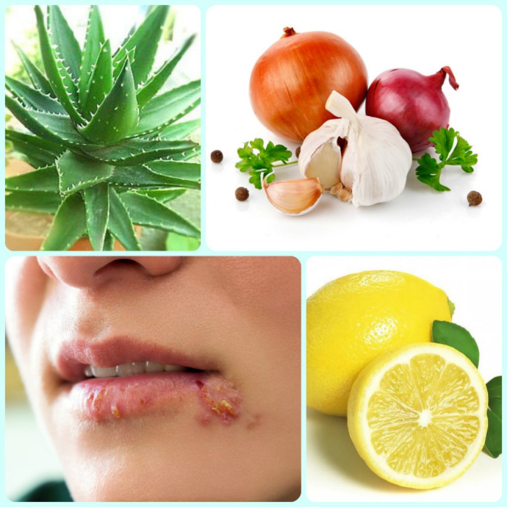 An effective remedy for herpes - Corvalol. It helps, do not believe 82