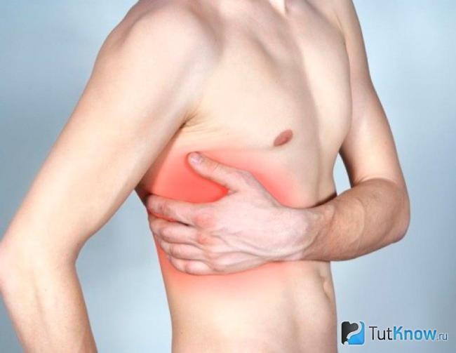 Anévrisme Intercostal. Névralgie intercostale - symptômes, causes et ...